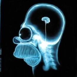 Homer's Brain